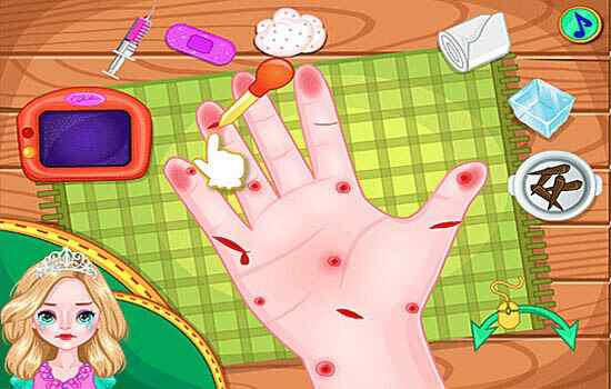 Play Princess Anna Hand Doctor